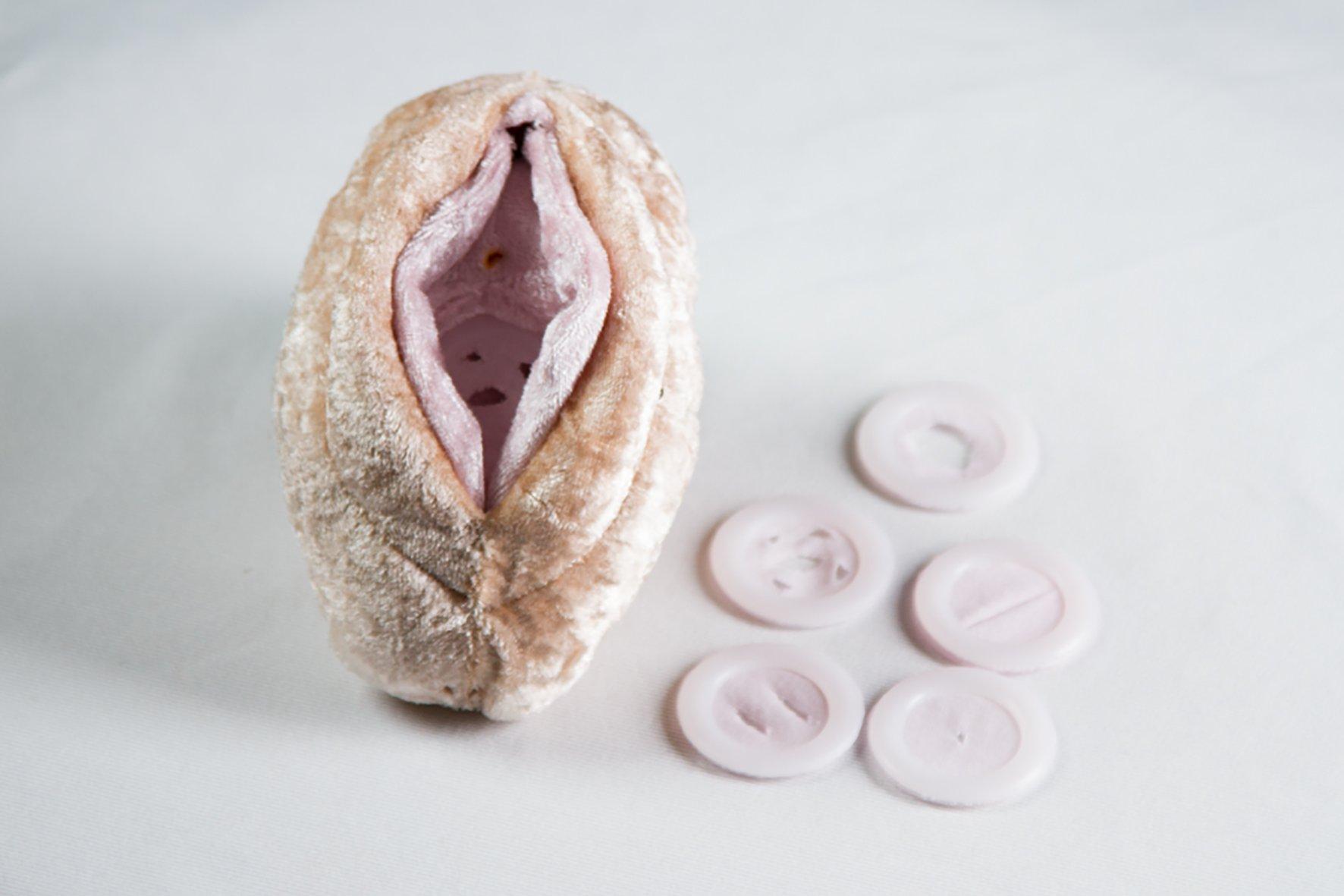 Jungfernhäutchen (Hymen)